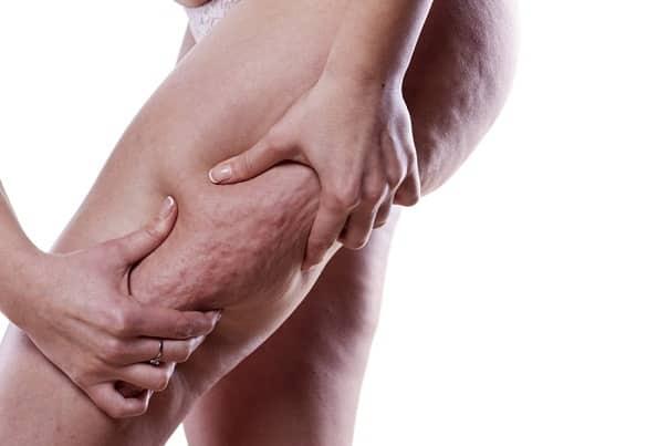 8 astuces naturelles pour réduire efficacement la cellulite